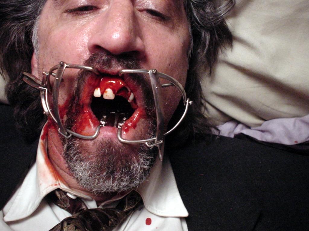 Tad teeth